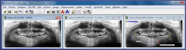 Apteryx digital imaging