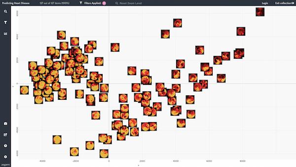 Zegami echocardiogram clustering