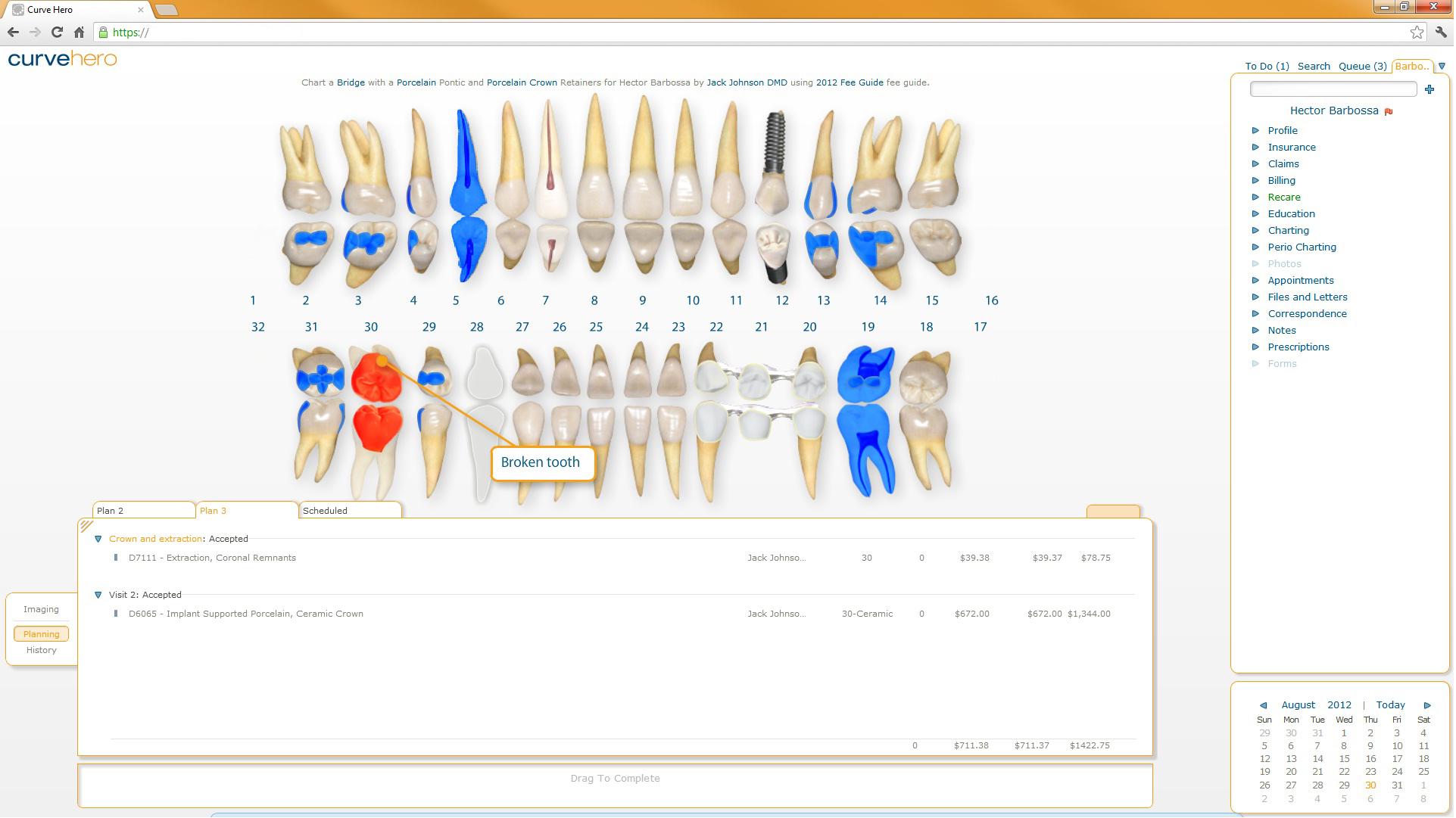 Curve Dental - Charts