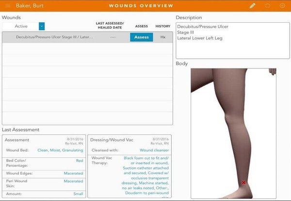 MatrixCare wounds overview