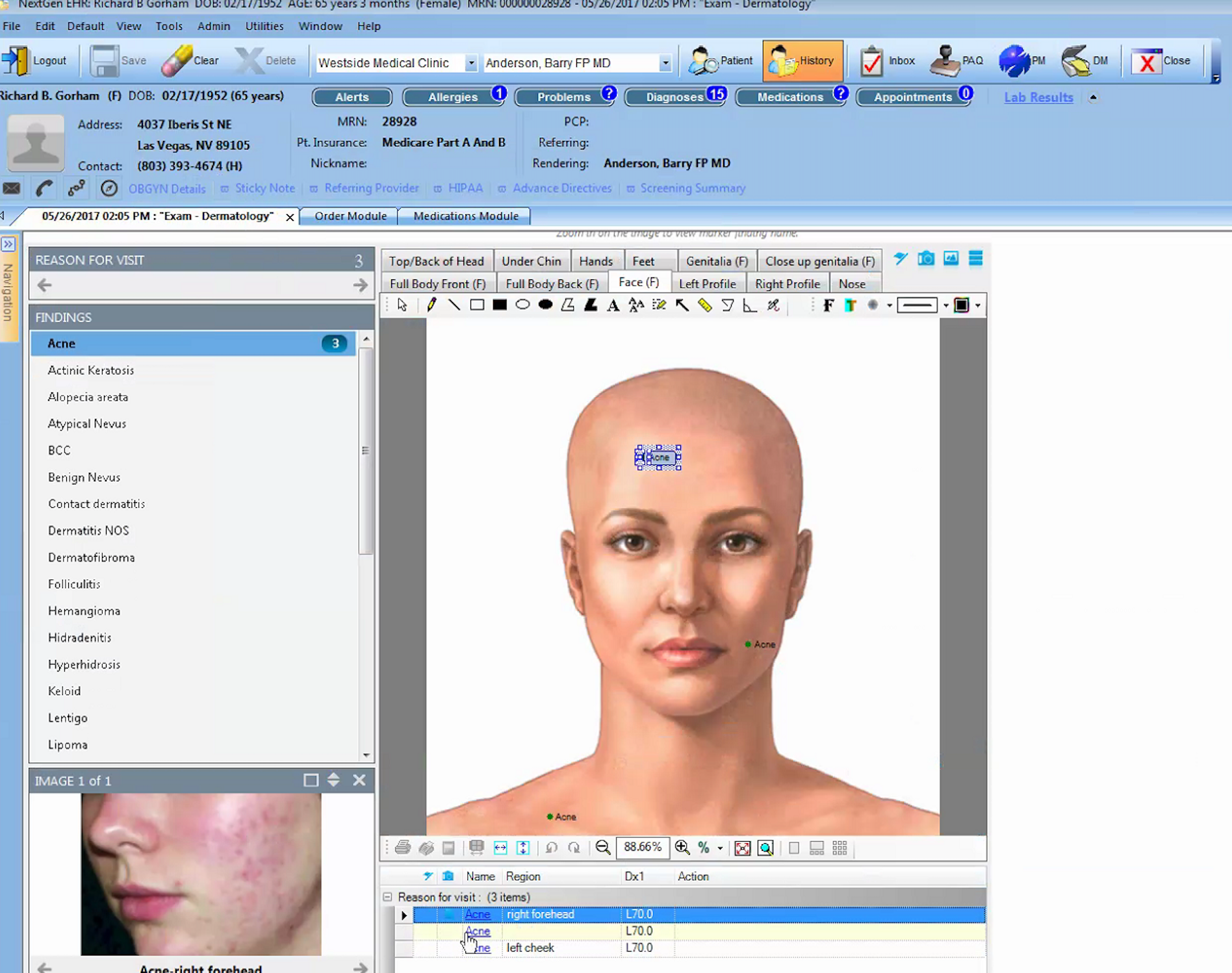 NextGen Healthcare - Graphical exam tool