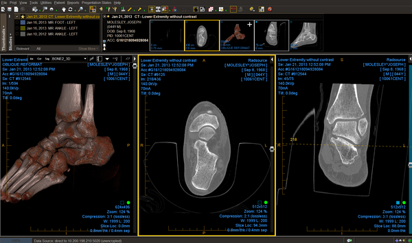 Ankle CT demonstrating viewer capability