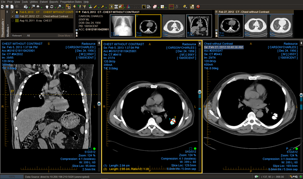 Chest CT with prior study comparison
