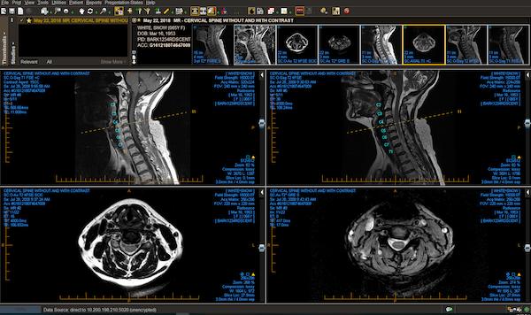 Cervical spine MR showing spine labeling