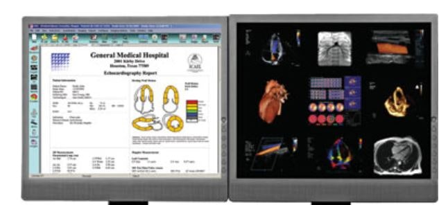 Cardiovascular Information System Reports