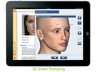 3D smart stamping