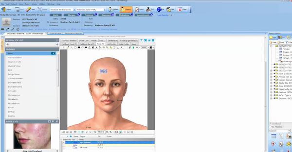 NextGen Enterprise graphic exam tool