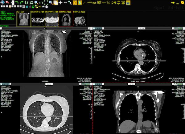Opal-EHR - Web CT