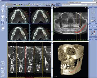 3D implant viewer 2