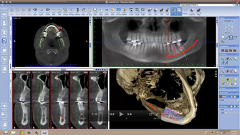 3D implant viewer 3