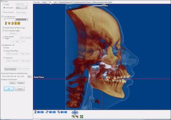 Skeletal view