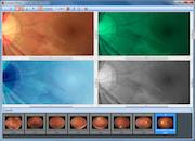 Acuitas activEHR 2.0 - Compare photos