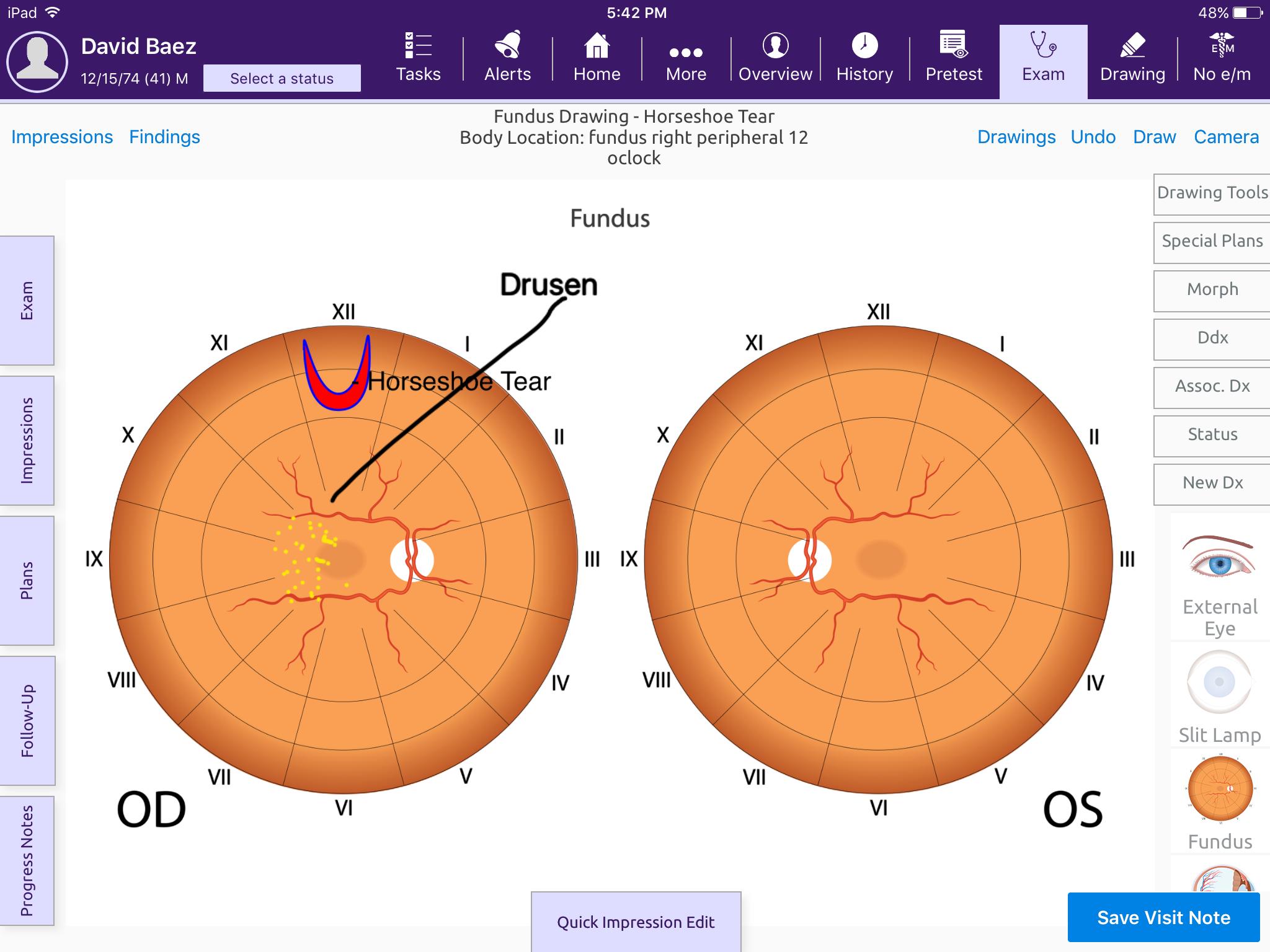 Modernizing Medicine's EHR & Healthcare IT Suite - Ophthalmology